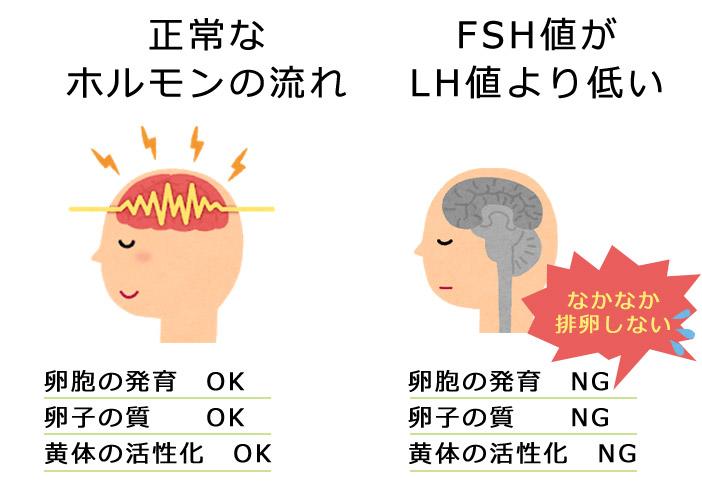 FSH値がLH値より低い